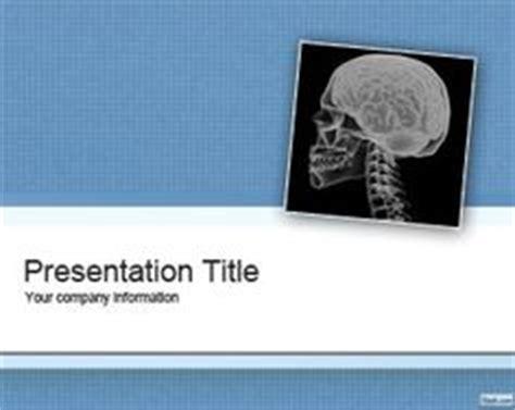 Free schizophrenia research paper